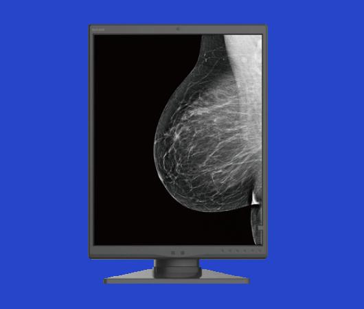monitor diagnostico grayscale